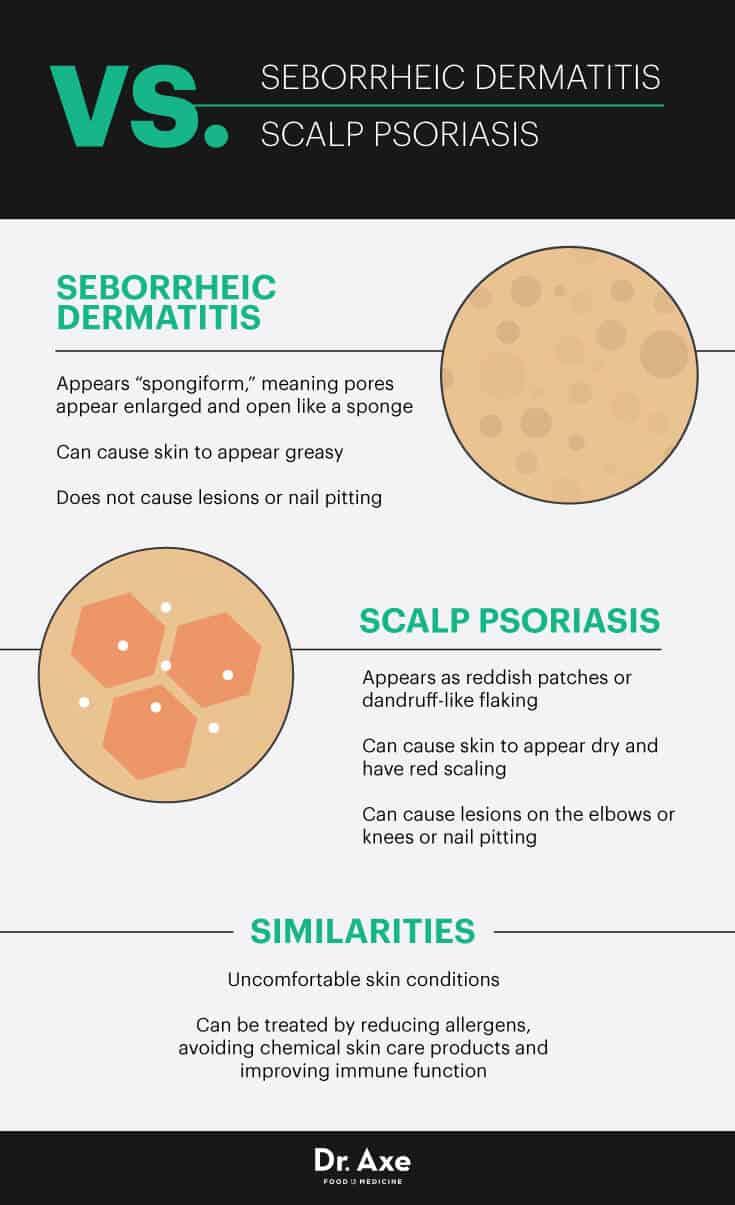 Seborrheic dermatitis vs. scalp psoriasis - Dr. Axe