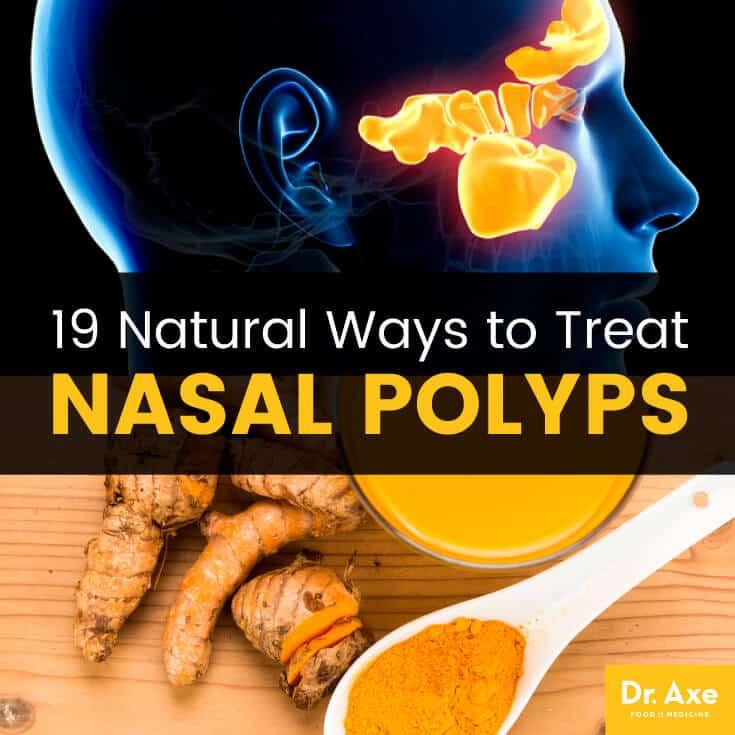 Nasal polyps - Dr. Axe