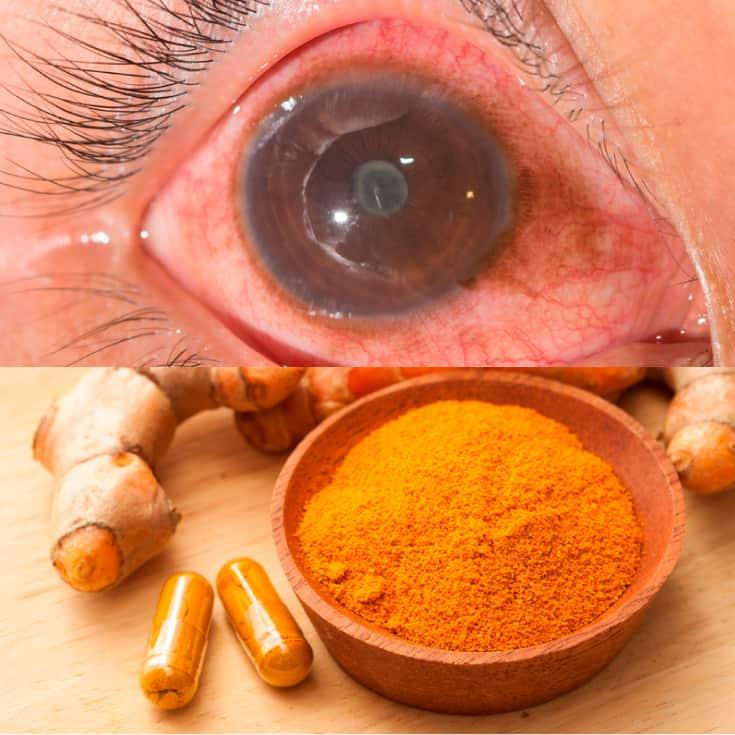 Uveitis + 7 Natural Ways to Improve Symptoms - Dr  Axe