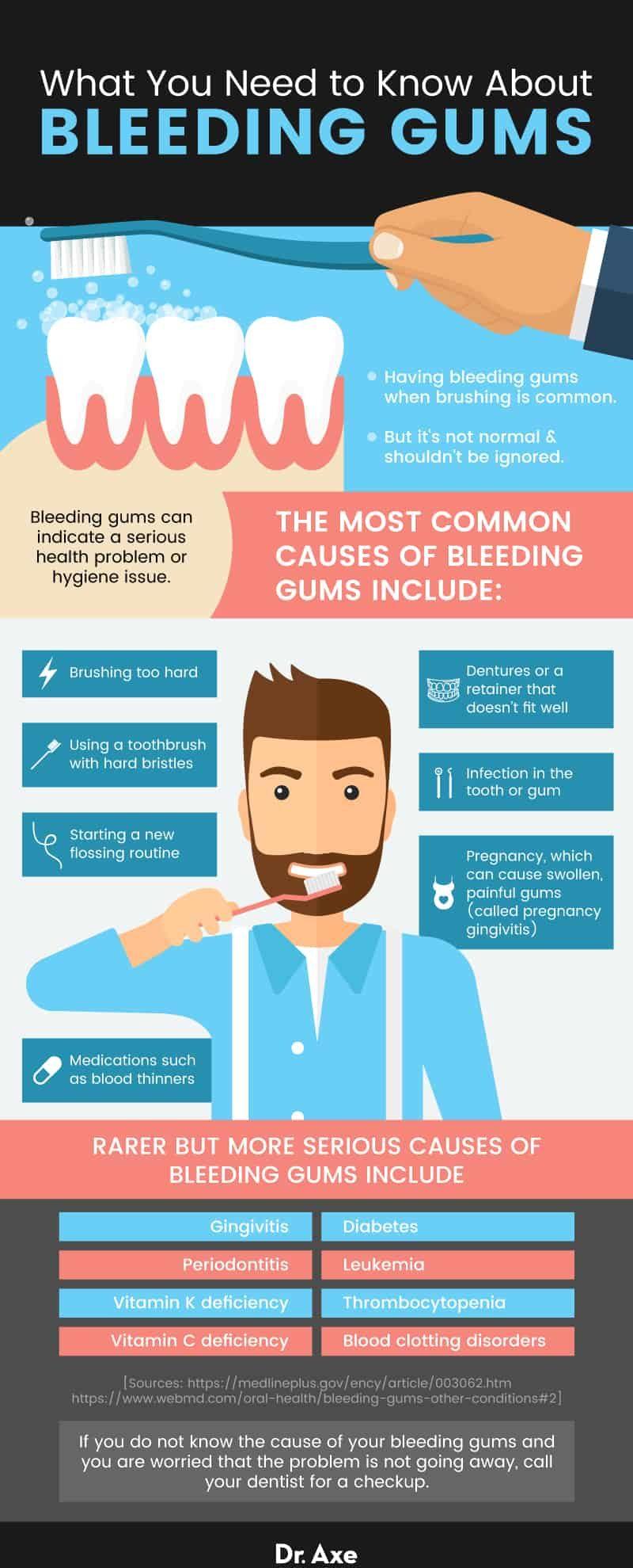 All about bleeding gums - Dr. Axe