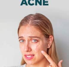 Nodular acne - Dr. Axe